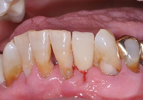 health centered dentistry midland tx services dental implants after